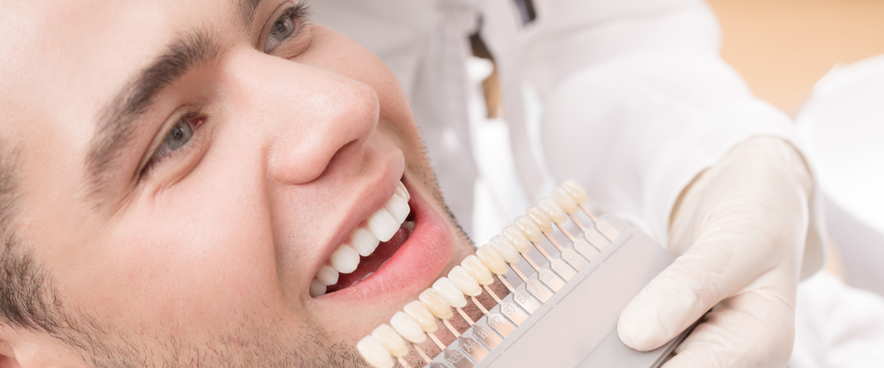 Teeth Whitening Kits Laser Cleaning Clinic Auckland